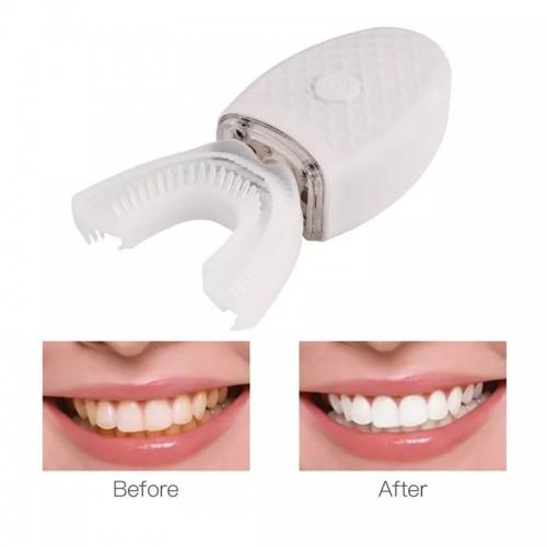 جهاز تبييض الاسنان الطبي بالليزر