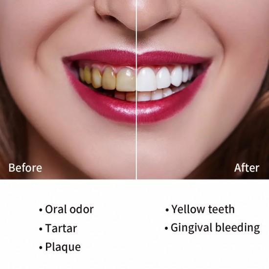 فرشاة أسنان كهربائية بأربع رؤوس بديلة